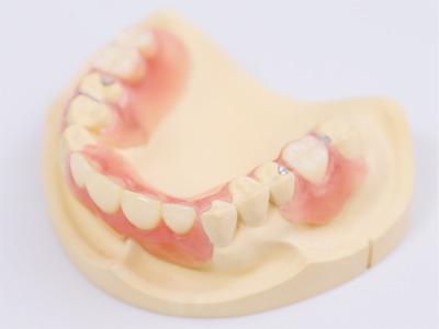 バネがなく目立たない入れ歯