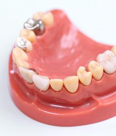 銀歯におけるリスクについて